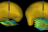 Deep brain stimulation (DBS)